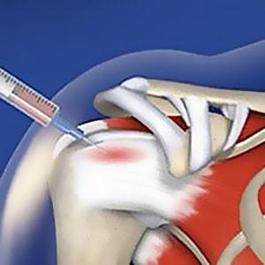 اوزون تراپی | کلینیک درد مشهد | اوزون درمانی | دیسک کمر بدون جراحی مشهد | کلینیک تخصصی درد دکتر عرفانی در مشهد