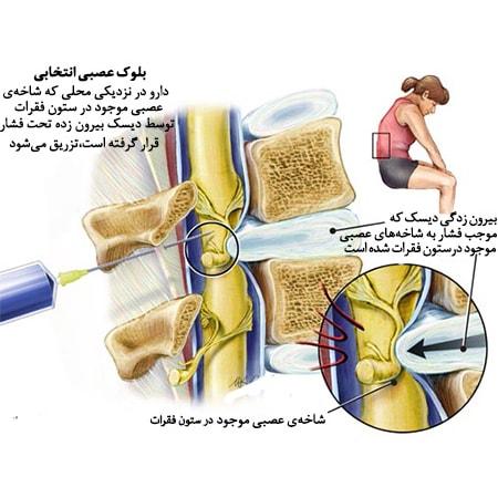 کلینیک درد مشهد | اوزون درمانی | دیسک کمر بدون جراحی مشهد | کلینیک تخصصی درد دکتر عرفانی در مشهد