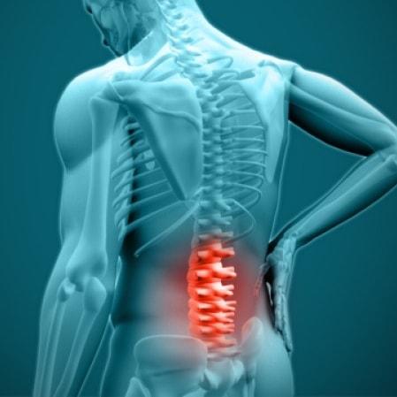 کلینیک درد مشهد | اوزون درمانی | دیسک کمر بدون جراحی مشهد | کلینیک تخصصی درد دکتر عرفانی در مشهد | درمان کمردرد و علت آن