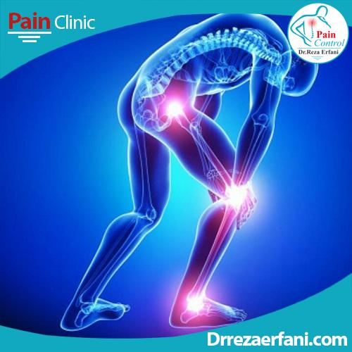 اوزون تراپی | اوزون درمانی | کلینیک درد مشهد | دیسک کمر بدون جراحی مشهد | اوزون درمانی دکتر عرفانی